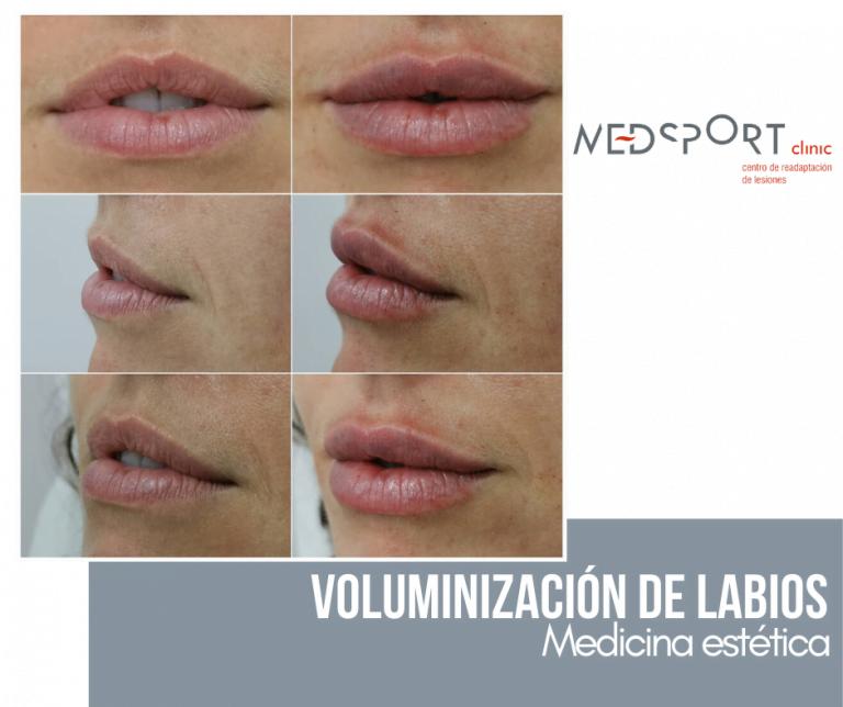 Medicina Estetica Melilla